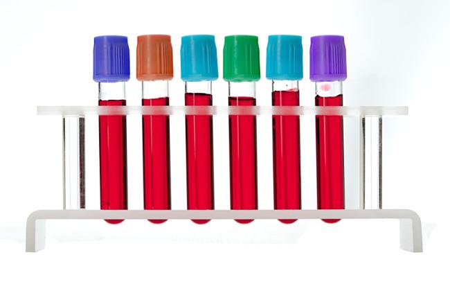 Sechs Glasampullen, mit Blut gefüllt